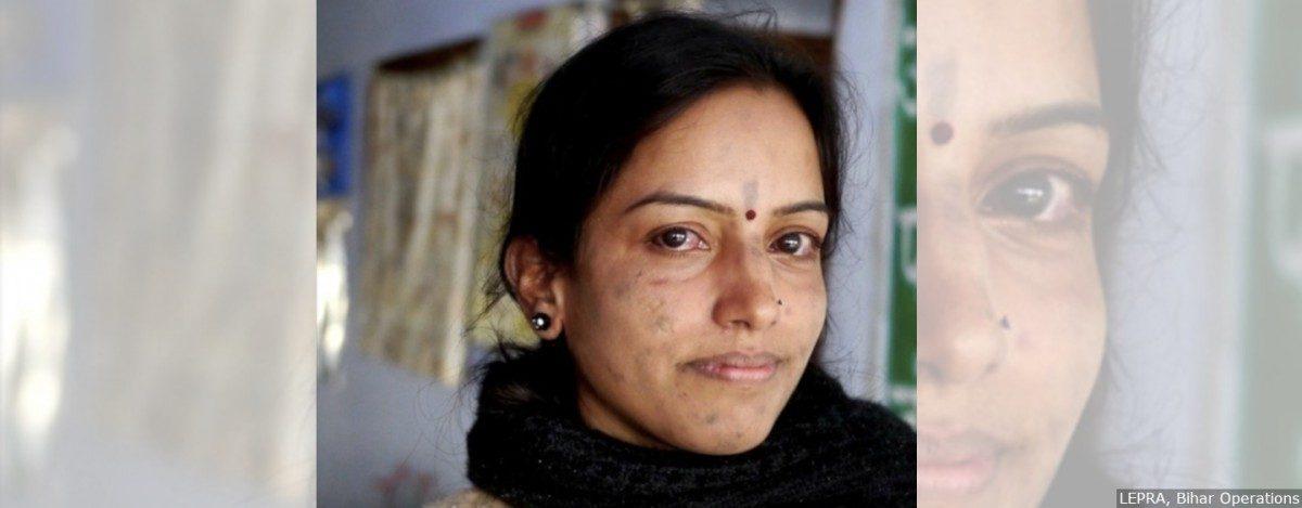कुष्ठरोग भारतात परत येतोय , पण सरकार मान्य करू इच्छित नाही!