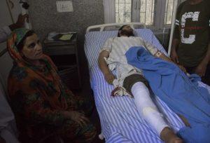 ३.९ ऑगस्टला श्रीनगरमध्ये पोलिसांनी पेलेट गनचा वापर केला. त्यात जखमी झालेली व्यक्ती व त्याचे कुटुंबिय.