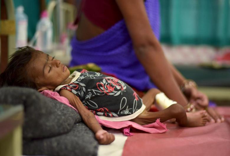 भारतात मुलांचे ६९% मृत्यू कुपोषणामुळे : युनिसेफ
